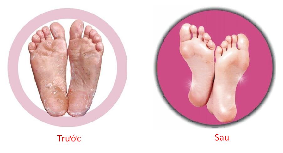 Lợi Ích Mặt Nạ Chân Restup Real Vitamin Foot Care Pack.png