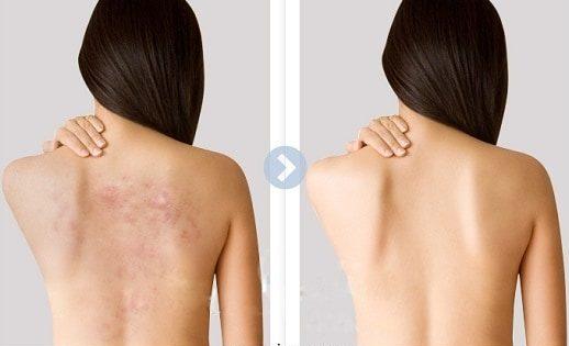 nguyên nhân gây ra mụn lưng