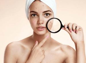 Những vấn đề thường gặp với làn da sau mụn