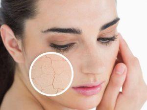 Tại sao da mặt bị khô vào mùa đông?