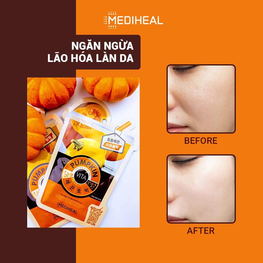 Mặt nạ tinh chất bí ngô Mediheal Pumpkin Vita Mask